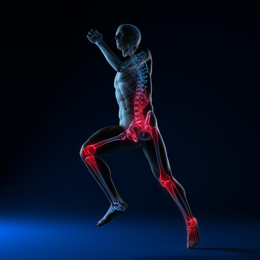 Artwork Photograph - Running Injuries, Conceptual Artwork by Sciepro