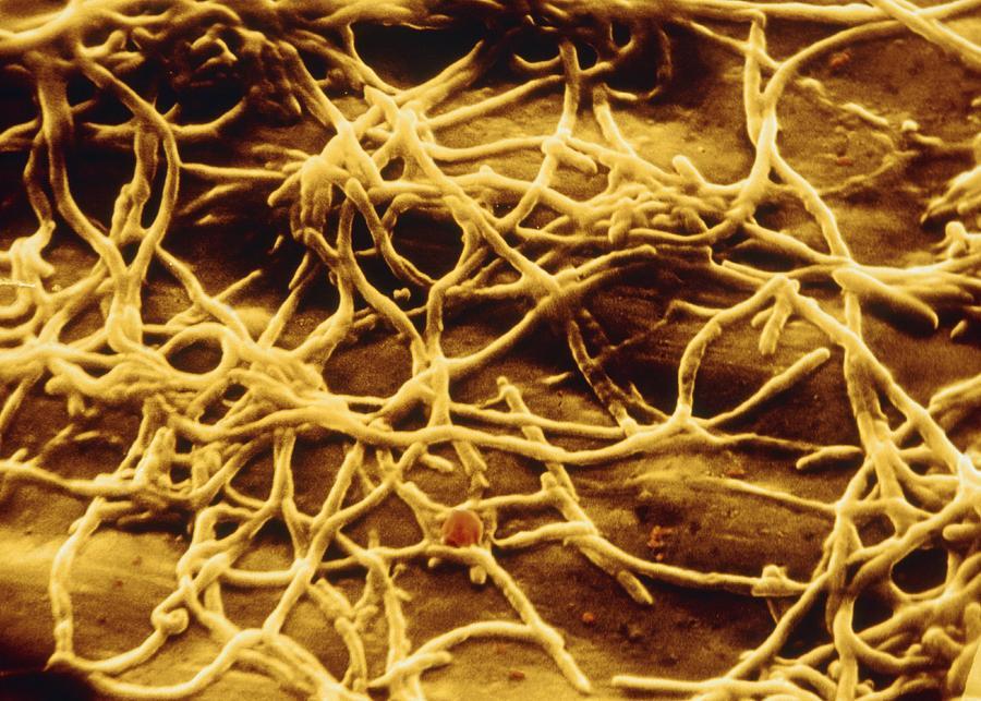 Legionella Pneumophila Photograph - Sem Of Legionella Pneumophila by Cnri