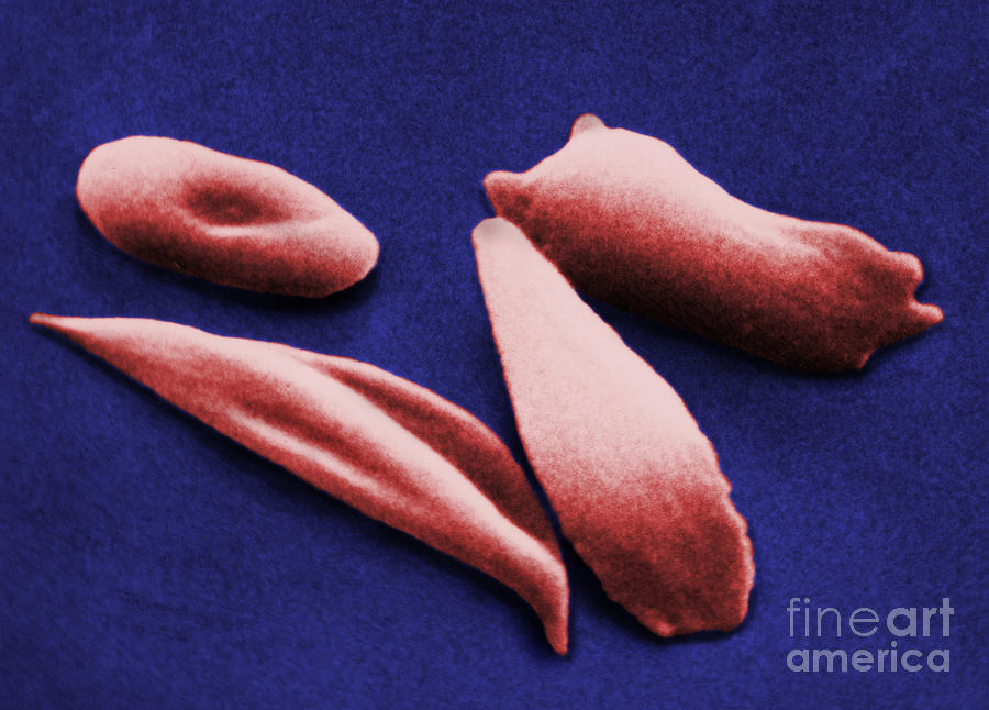Red Blood Cell Photograph - Sickle Red Blood Cells by Omikron