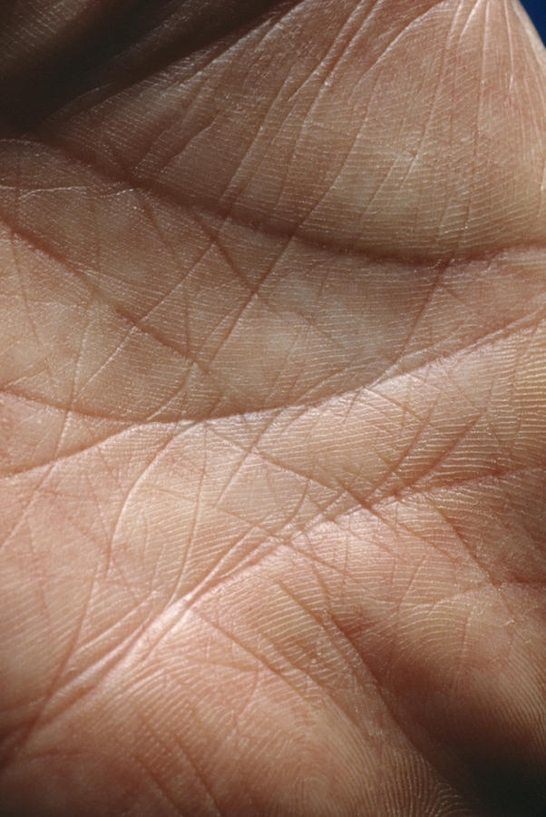 Hand Photograph - Skin by Mike Devlin