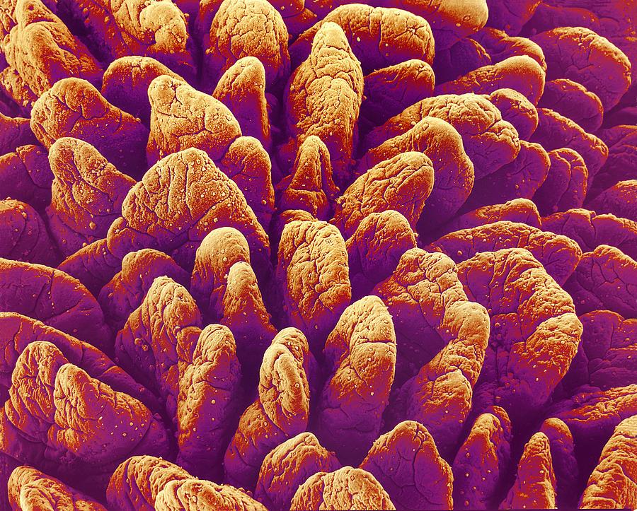 Small Intestine Villi Sem Photograph By Susumu Nishinaga