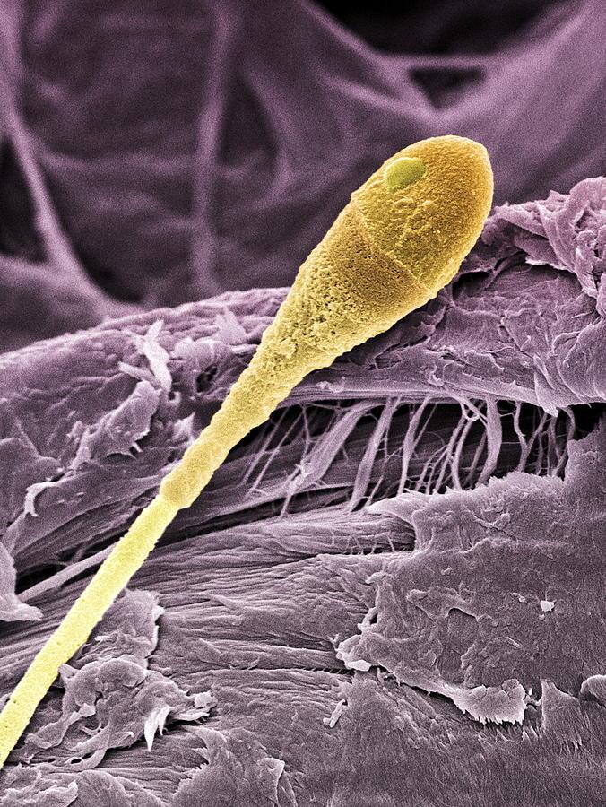 Sperm Photograph - Sperm Cell, Sem by Steve Gschmeissner