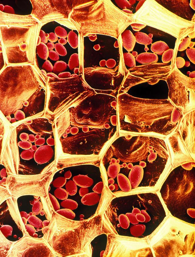 Potato Photograph - Starch Grains In Potato Cells by Dr Jeremy Burgess