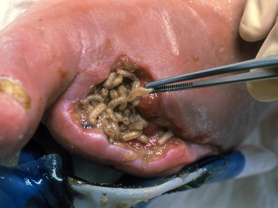 Surgeon Placing Maggots In A Wound To Clean It Photograph