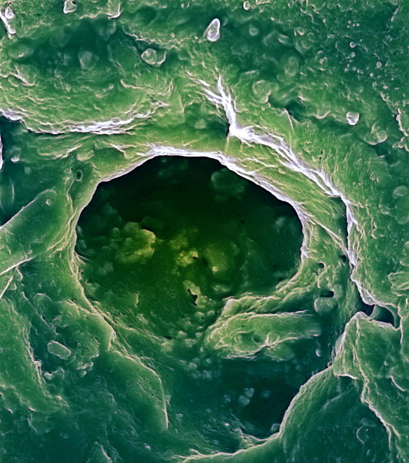 Sweat Pore Photograph - Sweat Pore, Sem by Biomedical Imaging Unit, Southampton General Hospital