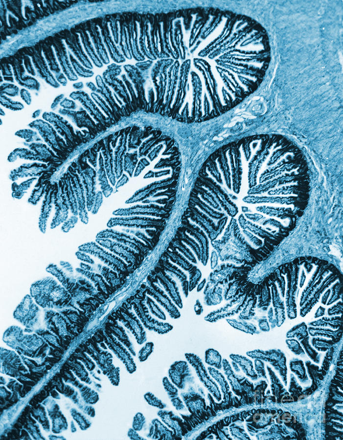 Cell Photograph - Tem Of Intestines Villi by Science Source