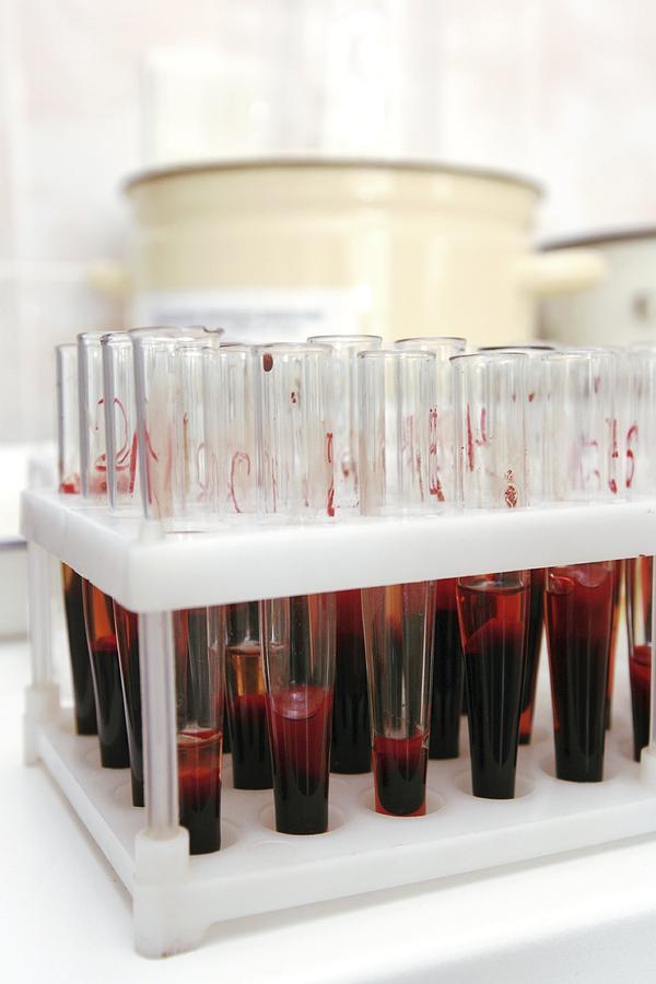 Test Photograph - Test Tubes In A Public Health Lab by Ria Novosti
