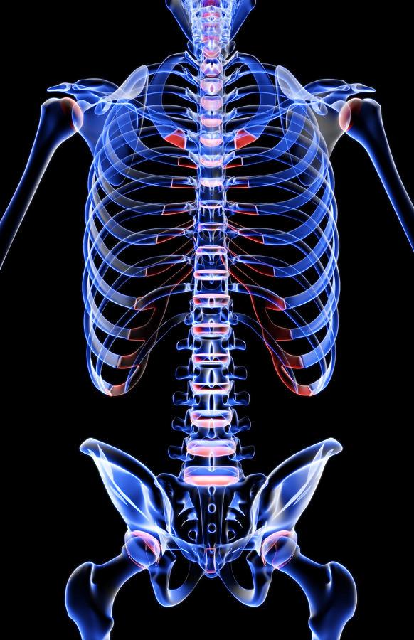 The Bones Of The Trunk Digital Art by MedicalRF.com