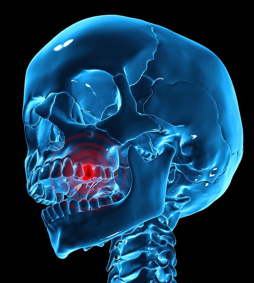Square Digital Art - Toothache, Conceptual Artwork by Andrzej Wojcicki