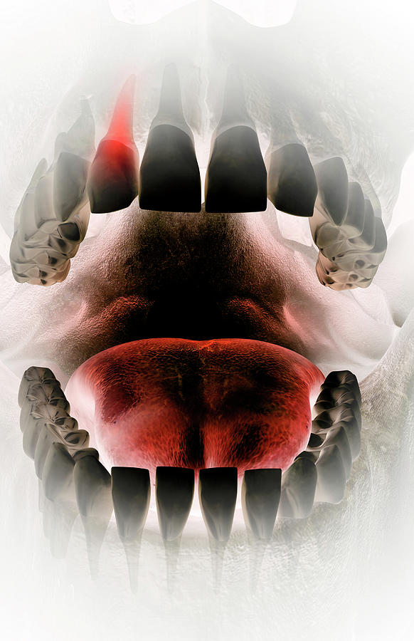 Vertical Digital Art - Toothache by MedicalRF.com