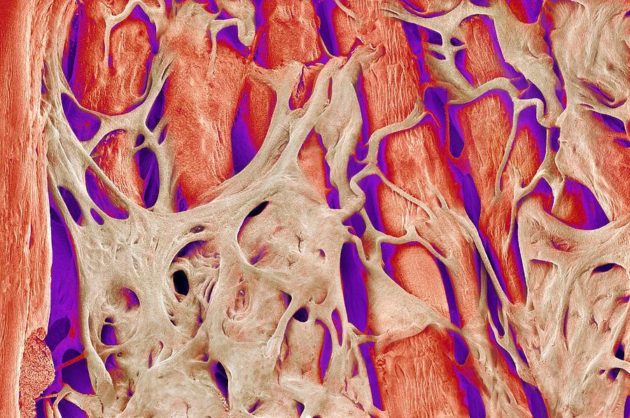 Tissue Photograph - Trabeculae Carneae In The Heart, Sem by Susumu Nishinaga