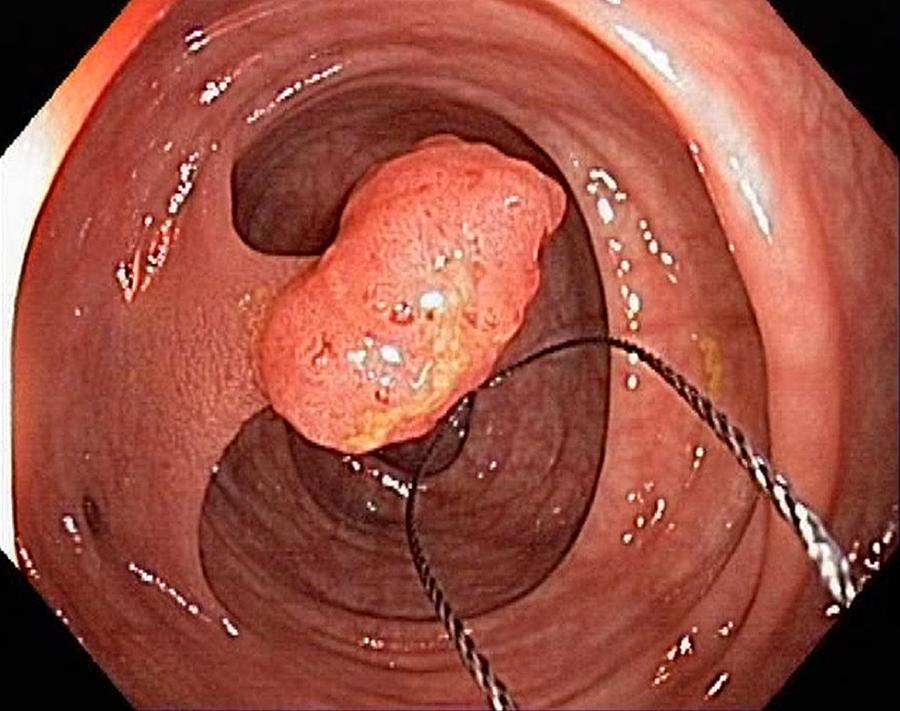 Colonoscope Photograph - Tubular Polyp In The Colon by Gastrolab