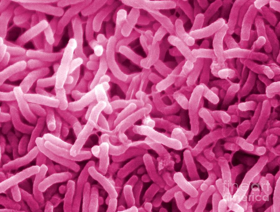 Vibrio Cholerae Photograph - Vibrio Cholerae by Louisa Howard and Charles Daghlian and Photo Researchers