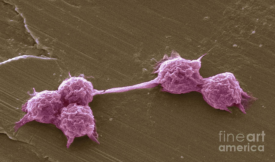 Scanning Electron Micrograph Photograph - Water Biofilm With H. Vermiformis Cysts by Science Source