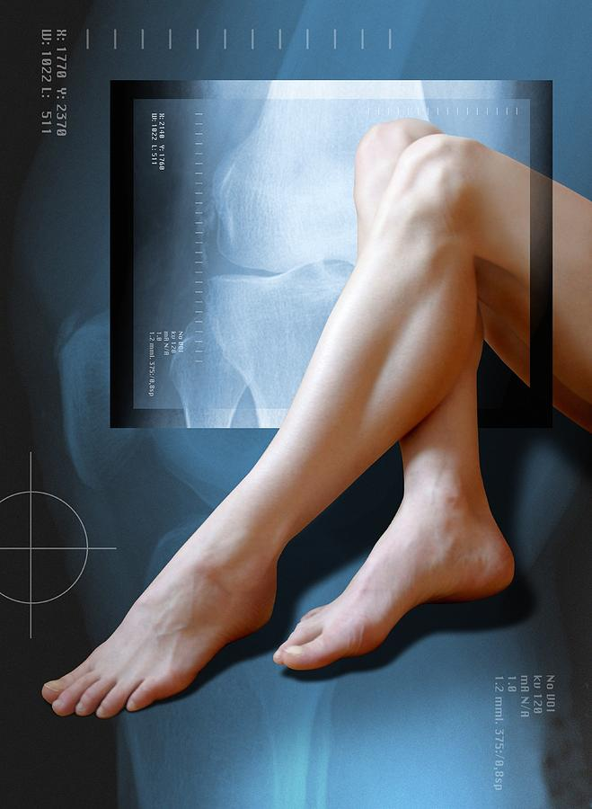 Leg Photograph - Womans Legs, With Knee X-ray by Miriam Maslo