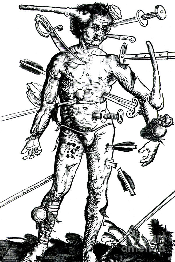 Science Photograph - Wound Man 1517 by Science Source