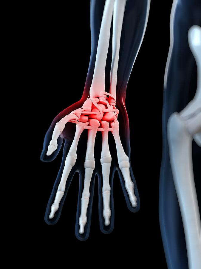Wrist Pain, Conceptual Artwork Digital Art by Sciepro