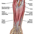 Anatomy Of Forearm Muscles, Anterior by Stocktrek Images