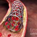 Arterial Stent by Science Picture Co