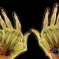 Arthritic Hands, X-ray by Zephyr
