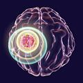 Brain Cancer Treatment by Kateryna Kon/science Photo Library