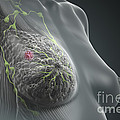 Breast Cancer by Science Picture Co