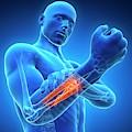 Human Arm Pain by Sebastian Kaulitzki