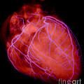 Human Heart by David Bassett