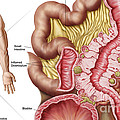 Illustration Of Diverticulosis by Stocktrek Images