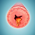 Infected Human Bronchus by Pixologicstudio/science Photo Library