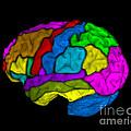 Mri Of Normal Brain by Living Art Enterprises