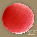 Red Blood Cell In Hypotonic Solution by David M. Phillips
