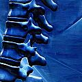 Thoracic Spine by Joseph Ventura