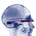 Woman Wearing Google Glass X-ray by Ted Kinsman