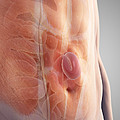 Ventral Hernia by Science Picture Co