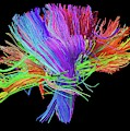 White Matter Fibres Of The Human Brain by Alfred Pasieka