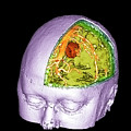 Brain Tumour by Simon Fraser/science Photo Library