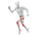 Joint Pain by Sciepro/science Photo Library