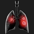 Lung Cancer by Pixologicstudio/science Photo Library