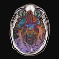 Stroke by Zephyr/science Photo Library