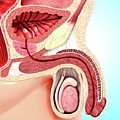 Enlarged Prostate by Pixologicstudio/science Photo Library