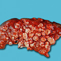 Lung Cancer by Medimage/science Photo Library