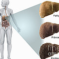 Stages Of Liver Disease by Science Picture Co