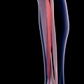 Leg Muscle by Sebastian Kaulitzki/science Photo Library