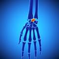 Hand Bones by Sebastian Kaulitzki/science Photo Library