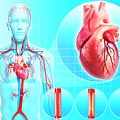 Atherosclerosis by Pixologicstudio/science Photo Library