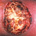 Skin Cancer by Dr P. Marazzi/science Photo Library
