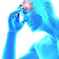 Human Headache by Sebastian Kaulitzki