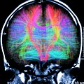 Brain Mri And White Matter Fibres by Alfred Pasieka/science Photo Library