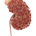 Polycystic Kidney by Science Picture Co